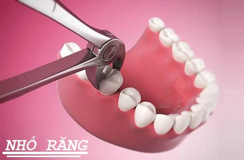 công nghệ nhổ răng bằng máy siêu âm piezotome