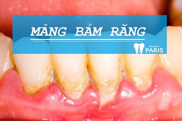 Mảng bám răng là nguyên nhân hàng đầu gây bệnh răng miệng