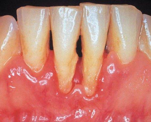 Mảng bám cao răng gây tụt nướu răng