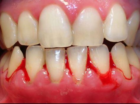 Việc tự lấy cao răng tại nhà có thể gây ra những tổn thương nghiêm trọng