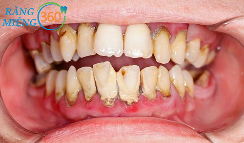 Cao răng là những mảng bám thức ăn bị vôi hóa
