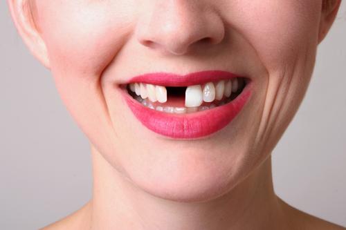 Chảy máu chân răng thường xuyên gây mất răng