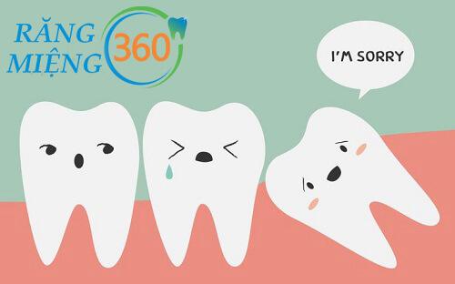 Đau răng - nhức răng do răng khôn mọc lệch