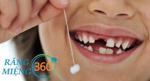Trẻ thay răng khi bắt đầu được khoảng 6 tuổi