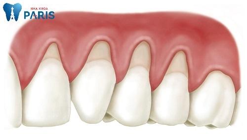 Răng bị hở chân răng phải làm sao