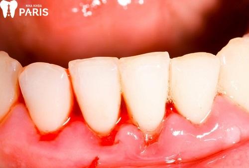 Trẻ bị chảy máu chân răng là tình trạng khá thường gặp
