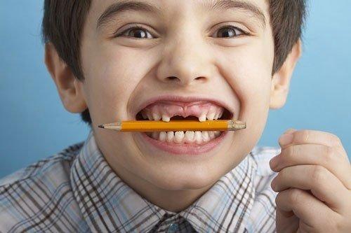 Khám răng định kỳ cho bé để phát hiện sớm tật nghiến răng