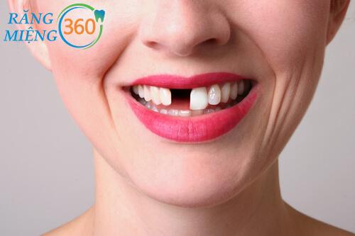 Viêm nha chu khiến mất răng và thậm chí nguy hiểm đến tính mạng
