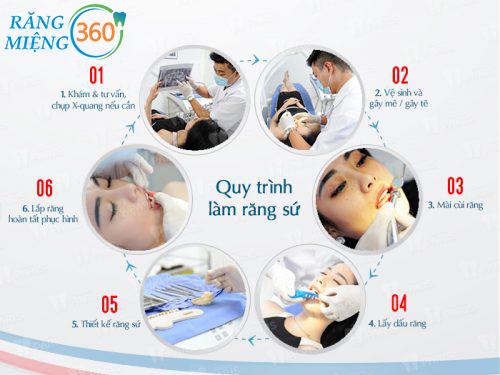 Quy trình bọc răng hàm bị sâu tại Nha khoa Paris