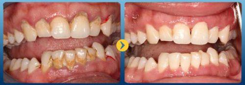 Lấy cao răng cách an toàn và hiệu quả để phòng ngừa bệnh răng miệng.