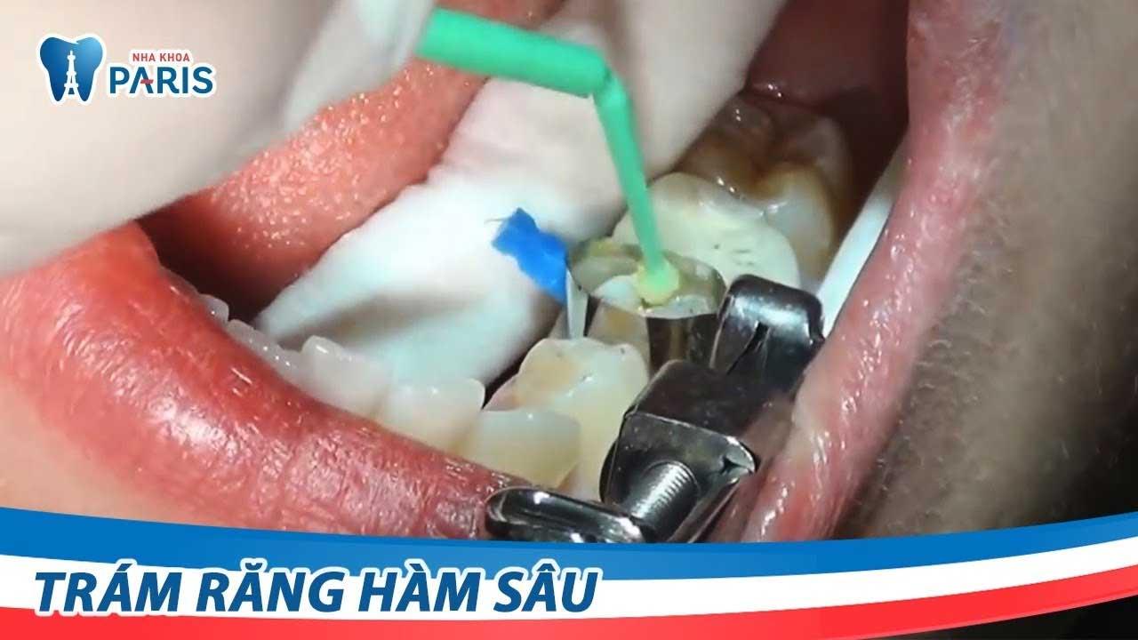 Trám răng Laser Tech - trị sâu răng nhanh và hiệu quả