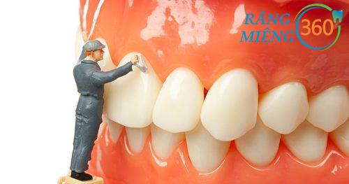 Lấy cao răng có hết hôi miệng không?