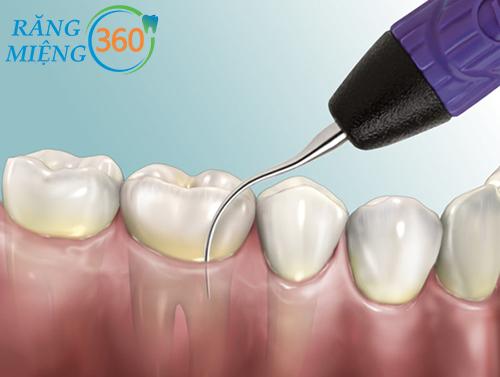 Cơ chế hoạt động của máy siêu âm lấy cao răng.