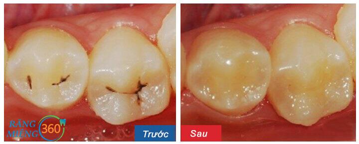 Công nghệ trám răng tại Nha khoa Paris