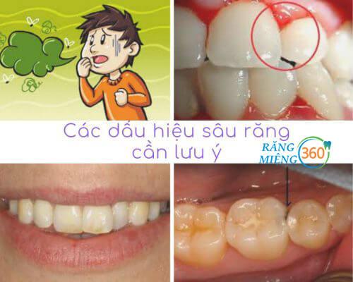 Các dấu hiệu sâu răng thường gặp