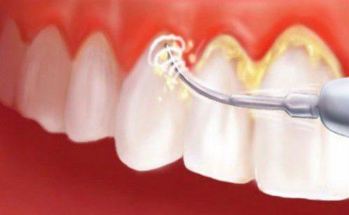 Phương pháp lấy cao răng tại phòng khám cho hiệu quả vượt trội.
