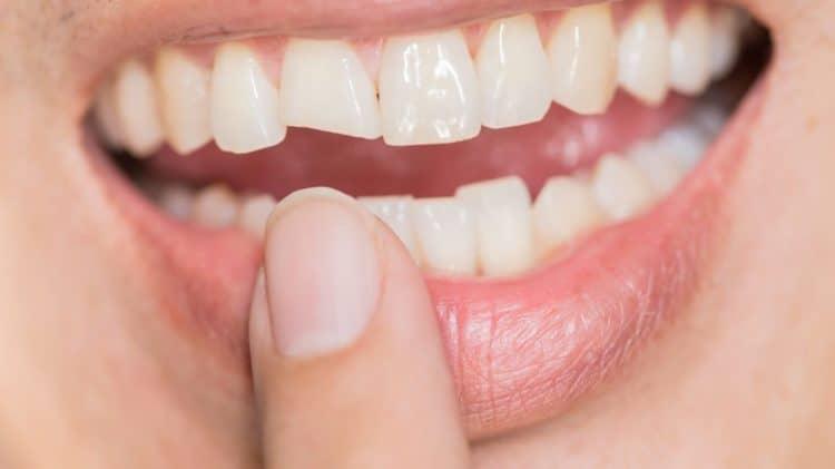 Răng yếu, mẻ, vỡ cũng có thể gây sâu răng