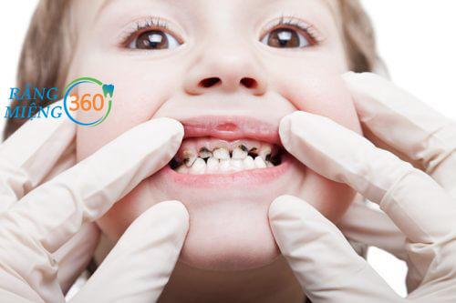 Nhổ răng sâu giá bao nhiêu tiền với răng sữa