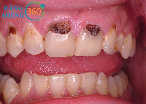 Nhổ răng sâu giá bao nhiêu tiền với răng cửa