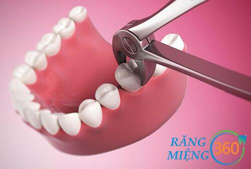Giá nhổ răng số 8 tương đối cao.