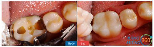 Trám răng hàm bị sâu tại Nha khoa Paris