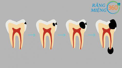 Các giai đoạn sâu răng hàm