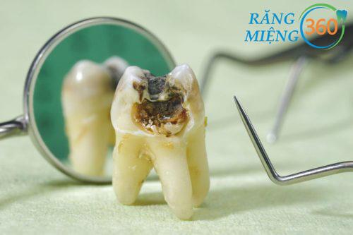 Công nghệ Piezotome giúp loại bỏ những nỗi sợ khi nhổ răng khôn bị sâu.