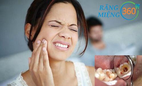 Sâu răng có ảnh hưởng gì đến sức khỏe của bạn?