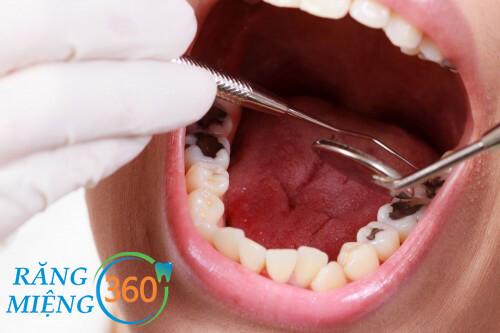 Điều trị sâu răng giai đoạn biến chứng vô cùng tốn kém.