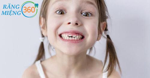Răng sâu làm các bé giảm tự tin khi giao tiếp