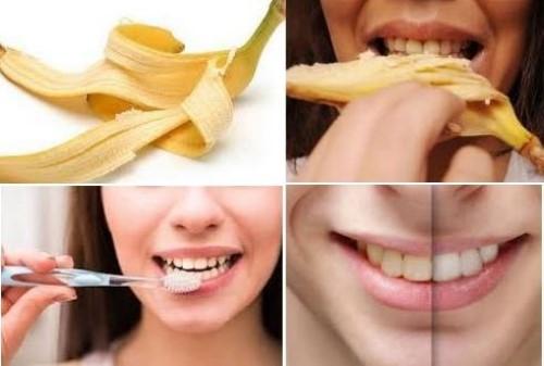 Các bước lấy cao răng bằng vỏ chuối