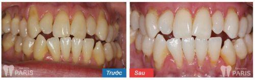 Khách hàng lấy cao răng tại Nha khoa Paris