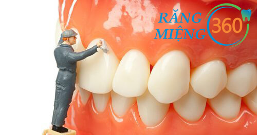 Lấy cao răng có ảnh hưởng gì không?