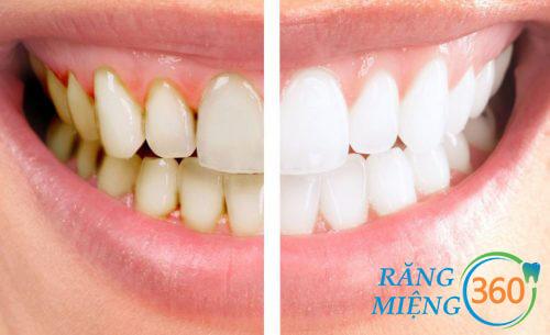 Khi lấy cao răng có thể dẫn đến chảy máu chân răng
