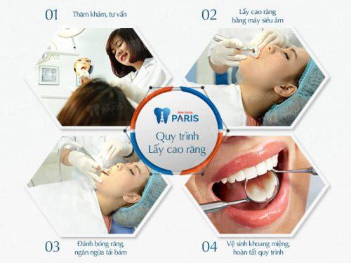 Quy trình lấy cao răng đạt chuẩn quốc tế tại nha khoa Paris