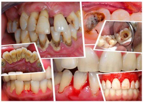 Các bệnh về răng miệng khi không lấy cao răng thường xuyên