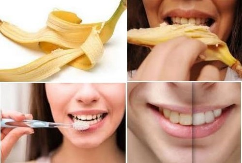 Quá trình lấy cao răng bằng vỏ chuối