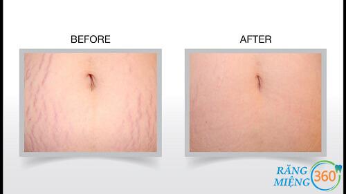 cách trị rạn da