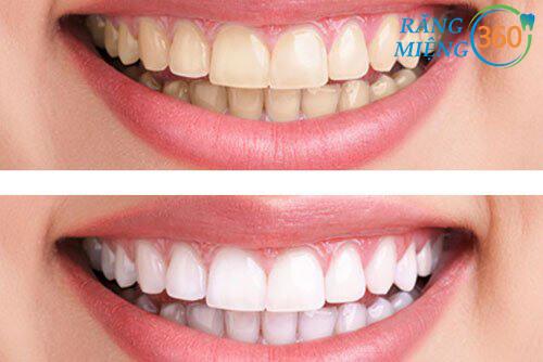 Cách loại bỏ đốm trắng trên răng