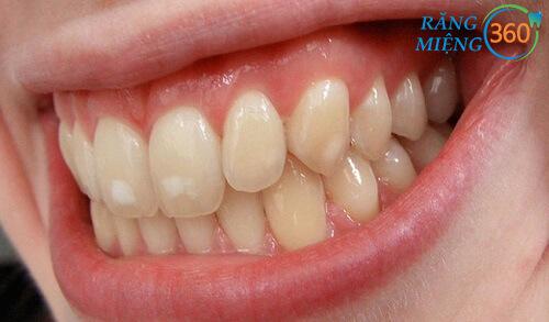 Xuất hiện đốm trắng trên răng