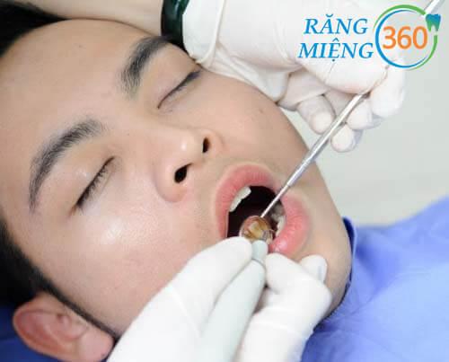 cách lấy cao răng bằng máy siêu âm