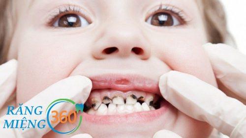 Hình ảnh sâu răng trẻ em
