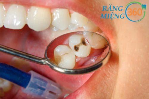 Những hình ảnh sâu răng trong từng giai đoạn