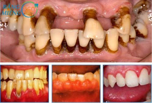 Hình ảnh răng sâu trẻ em