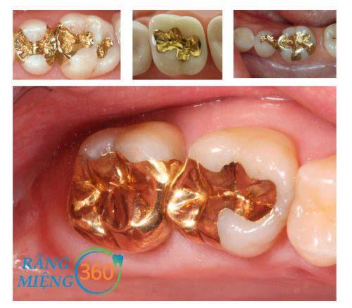 Hình ảnh răng sâu sau điều trị