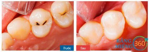 Hình ảnh răng sâu sau điều trị tại Paris