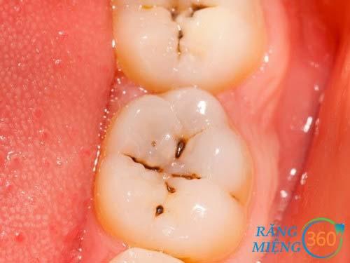 Hình ảnh sâu răng hàm được điều trị