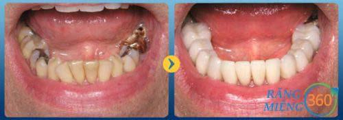 Hình ảnh sâu răng sau điều trị hàn trám răng