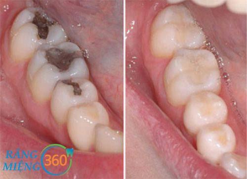 Hình ảnh sau điều trị sâu răng