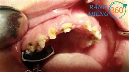 Hình ảnh sâu răng viêm lợi